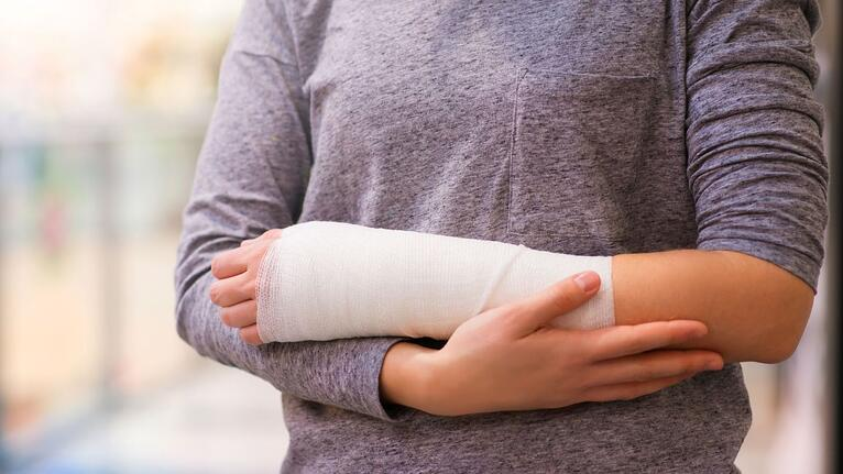 How To Qualify for SSDI for a Non-Healing Fracture to an Upper Extremity