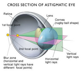 Astigmatism eye problem diagram