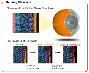 glaucoma-appearance of the retinal nerve fiber layer in glaucoma