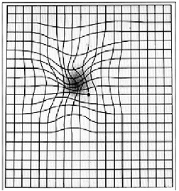 Amsler grid showing macular degeneration at Master Eye Associates Austin TX