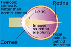 eye problem hyperopia (farsighted) causes blurred vision