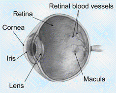 Eye diagram showing the cornea, the location of keratoconus eye problems.