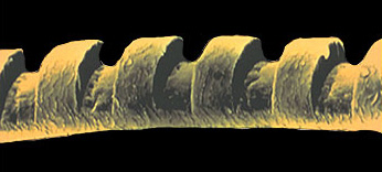 Photo shows laser accuracy - Magnified view of a human hair sculpted by an excimer laser