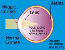 Eye problems - Myopia (nearsighted) causes blurred vision
