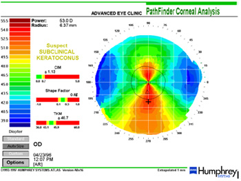 Cornea Analysis for contacts & Laser eye surgery & keratoconus
