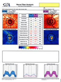 Glaucoma test report showing loss of retinal nerve fiber layer and early glaucoma diagnosis