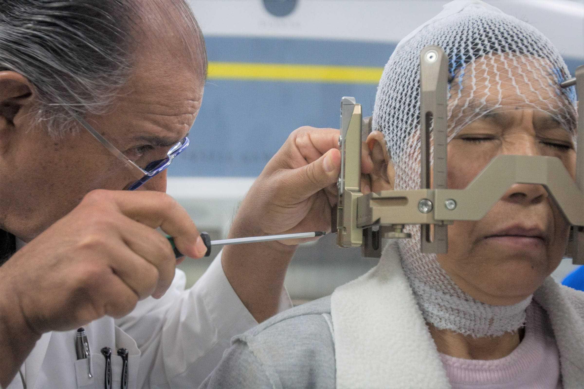 doctor de gamma knife fijando un marco estereotaxico en paciente