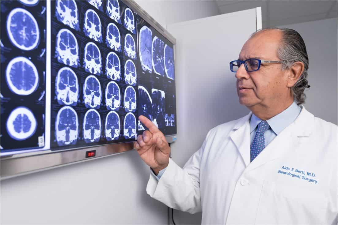 doctor de gamma knife revisando radiografia de un tumor cerebral