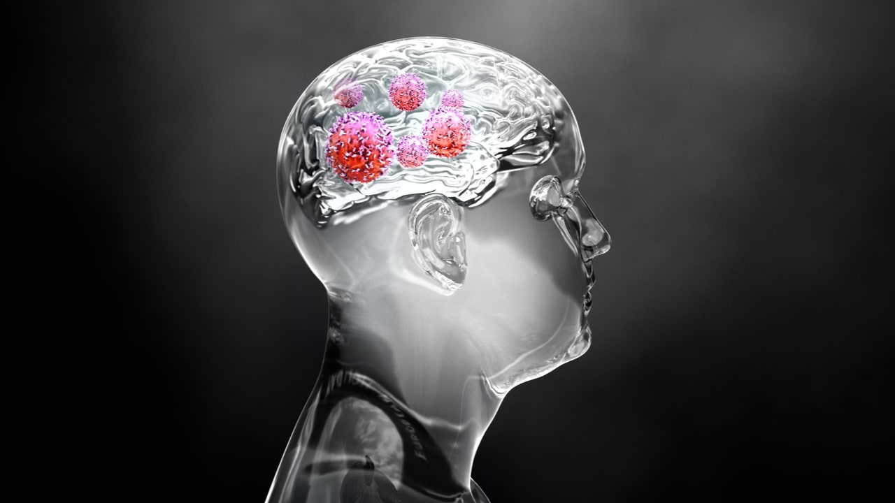 ilustracion de hombre con tumores metastasicos en el cerebro