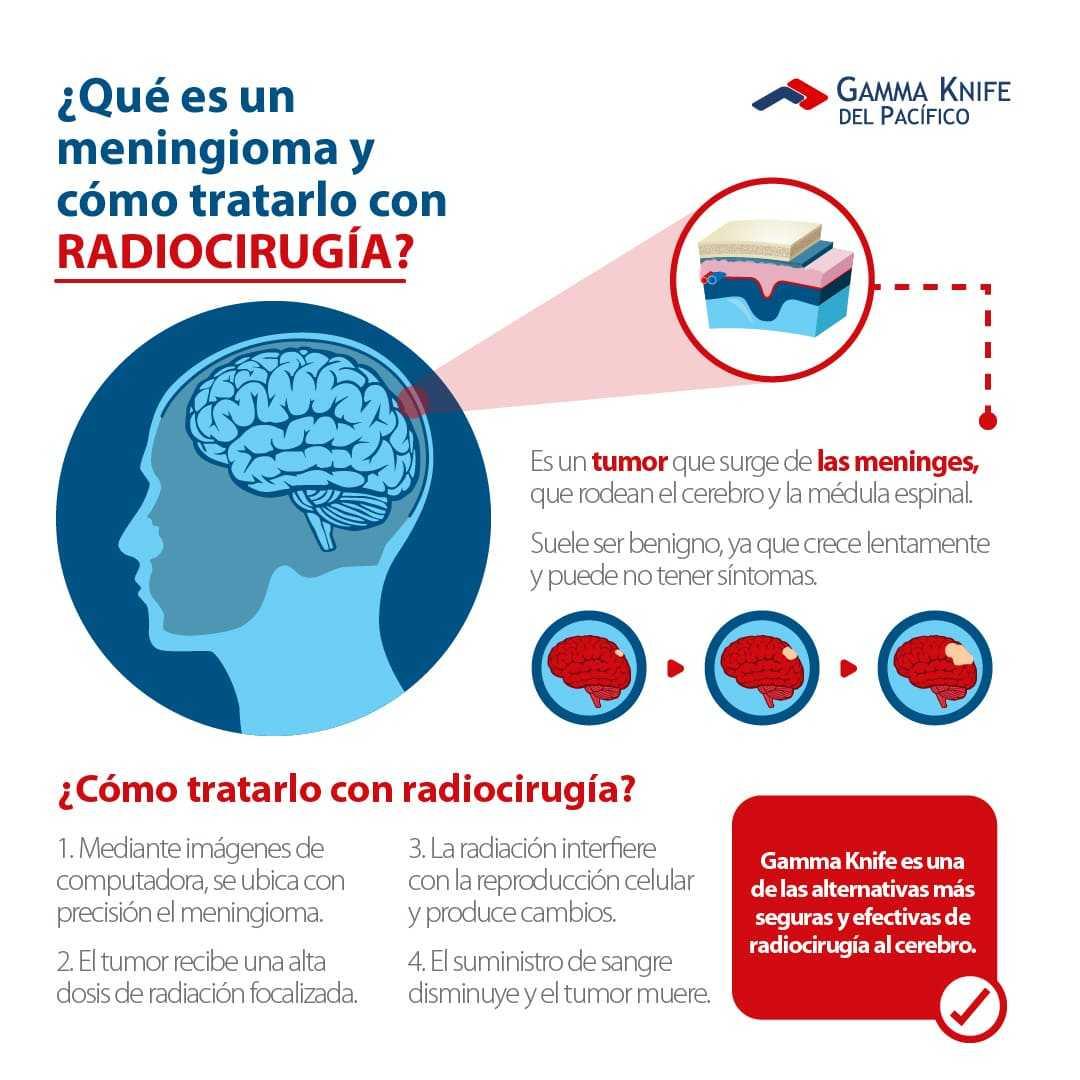 infografia que es un meningioma y como tratarlo con radiocirugia-1