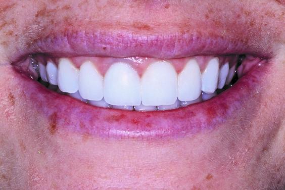 Patient's final smile after repair.