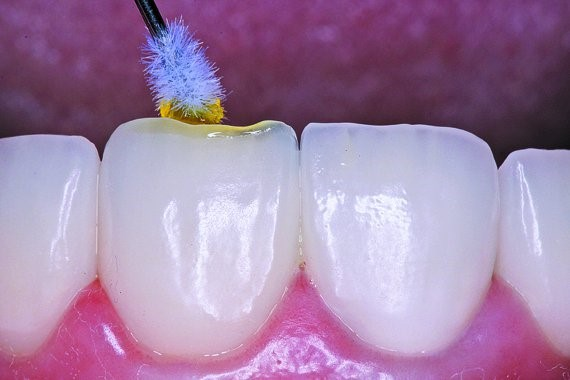 Ultradent's Silane is placed on the restoration and allowed to dry