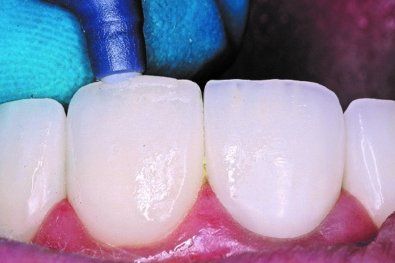 The final layer of composite is added to incisal edge repair