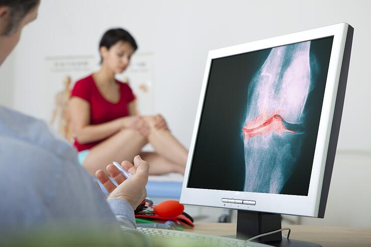 What are the Risk Factors for Osteoarthritis?
