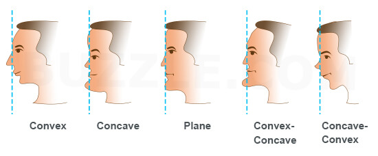 facial profiles suitable for forehead fillers