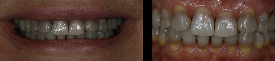 Patient's initial severe tetracycline stained teeth.
