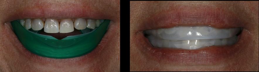 Patient using Opalescence Go in between treatments