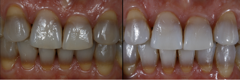 Results after the end of whitening treatments
