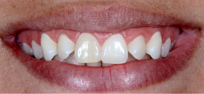 Patient presenting with left front tooth several shades darker than the other