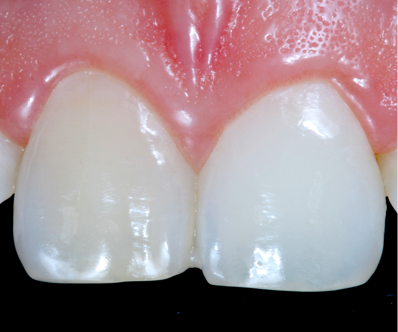 The darker tooth prior to treatment