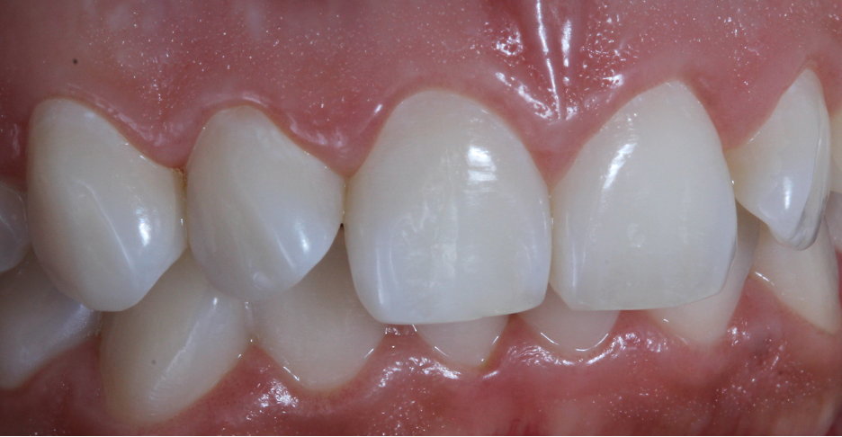 Final teeth whitening results