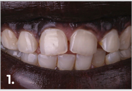 The patient was concerned about the gaps between her teeth