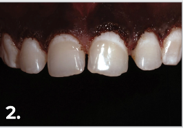 Dr. Jacobson performed a gingivectomy with the Gemini™ laser.