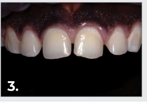 Healed gums three weeks post-op.