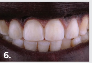 Excess composite was removed at the periphery and polishing was done